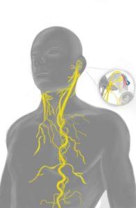 Einfluss auf Tinnitus